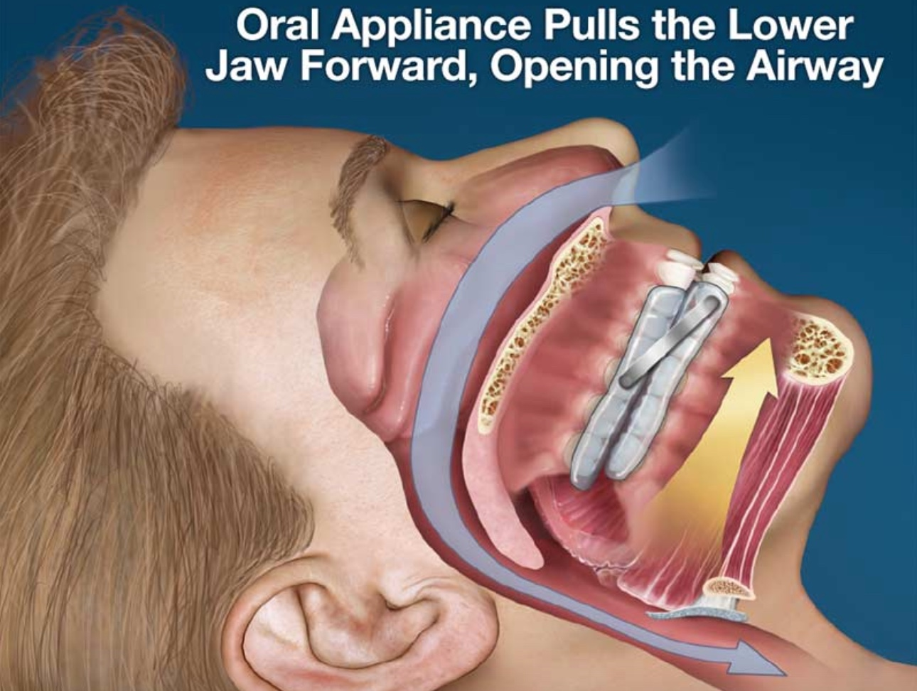 Effective  Oral  Appliance  Therapy  Treatment  For  Sleep  Apnea  By  Fuller  Sleep  And  TMJ  Solutions  Dentistry  In  Greensboro  NC